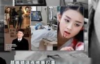 'Đứng ngồi không yên' trước hung tin Phùng Thiệu Phong đánh đập Triệu Lệ Dĩnh tới mức nhập viện?
